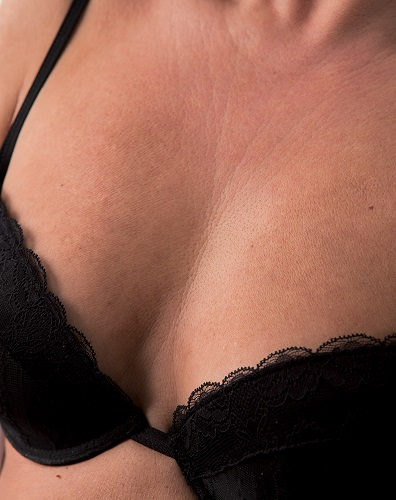 Viscoderm Decolletage - After
